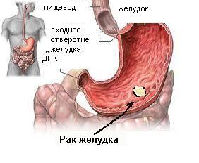 Мастопатия и рак груди