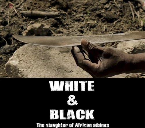 Biali czarni Rze¼ afryka?skich albinosów / White and Black (2010) PL.TVRip.XviD / Lektor PL