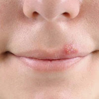 How to Get Rid of Cold Sores Fast? post image