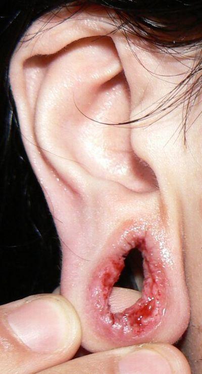 Veja o que piercings e alargadores podem fazer com você - Parte 3