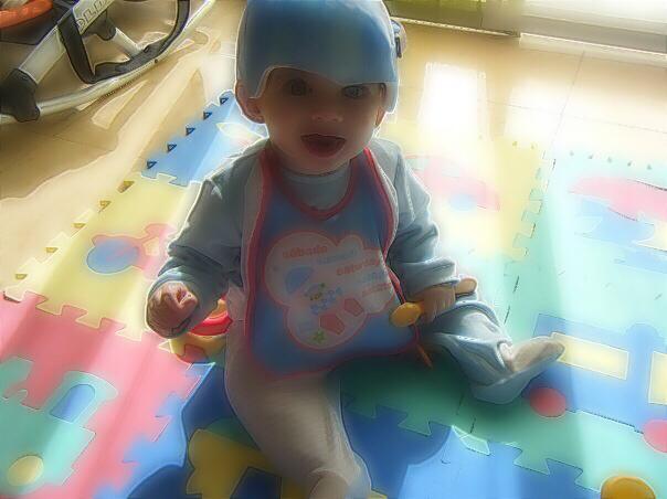 casco-ortopedico-plagiocefalia-bebe-deformidad-cabeza-torticolis-congenita