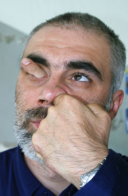 Man with finger up nose and out of eye