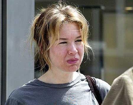 Renee Zellweger Ugly