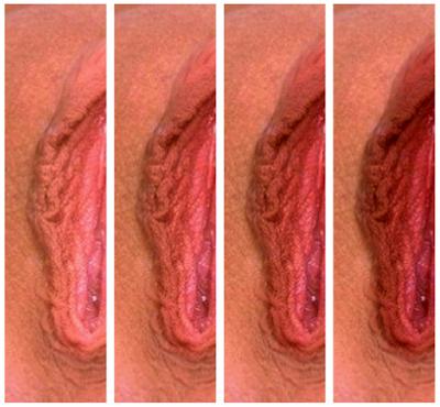 Женские формы половых губ