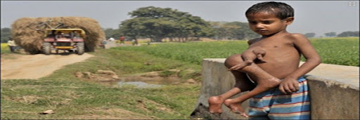 طفل من الهند مولود ومعه اجزاء توئمه الغير مكتمل