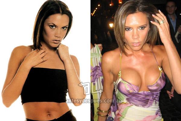 Los pechos operados de Victoria Beckham