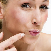 Post image for Anti-Acne Skin Care to Treat & Prevent Pimples