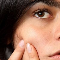 Why Getting Rid Of Acne The Easy Way Will Fail post image