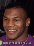 Mike Tyson,
