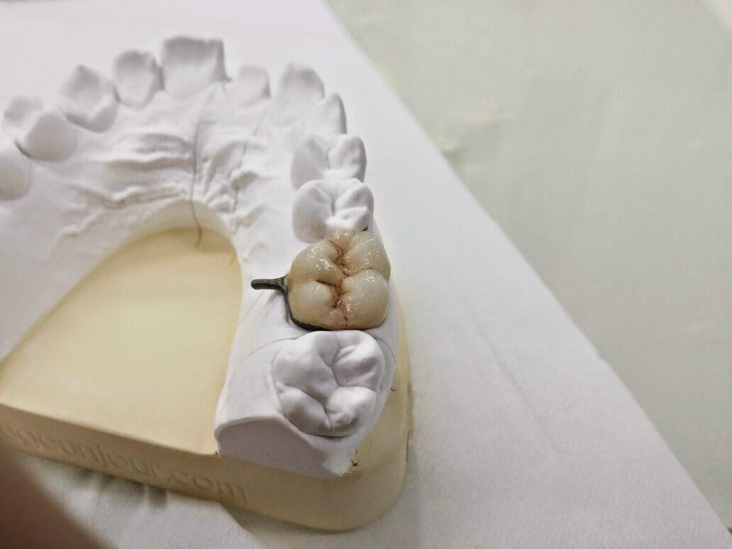 مركز الأسنان بريدة يقيم دورة IMG-20141016-WA0057.jpg