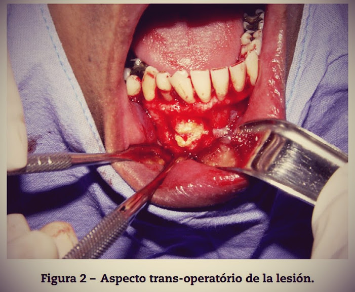 tumor-epitelial-odontogenico