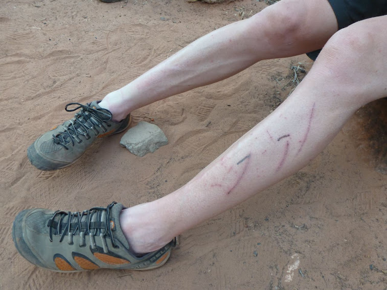 My Heart-shaped World: Love hurts: the aftermath of the Tonto Trail