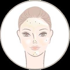 Type de peau : Peau grasse