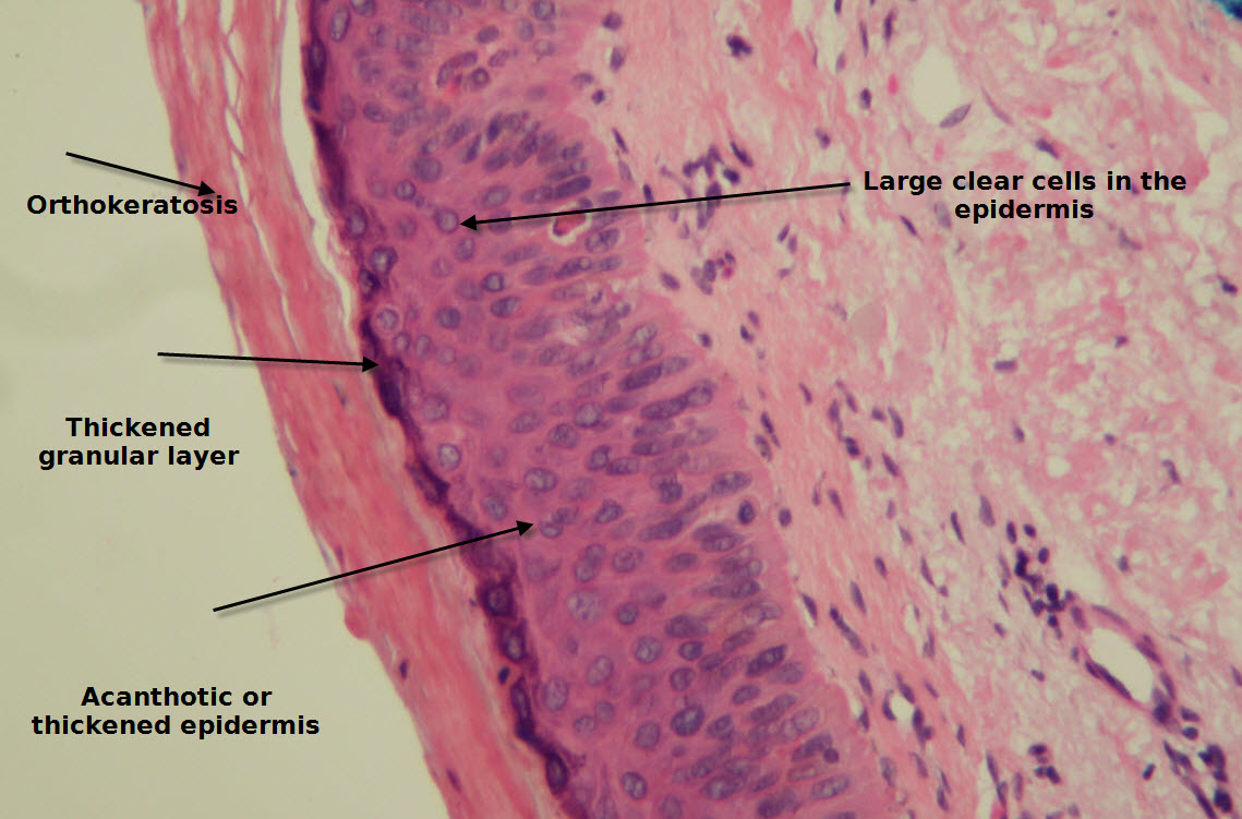 epidermis diagram diagram of epidermis with blister
