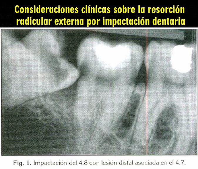 resorcion-radicular