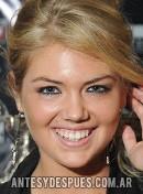 Kate Upton,