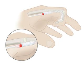Minh hoạ vị trí gây kẹt khi vận động trong bệnh ngón tay bật