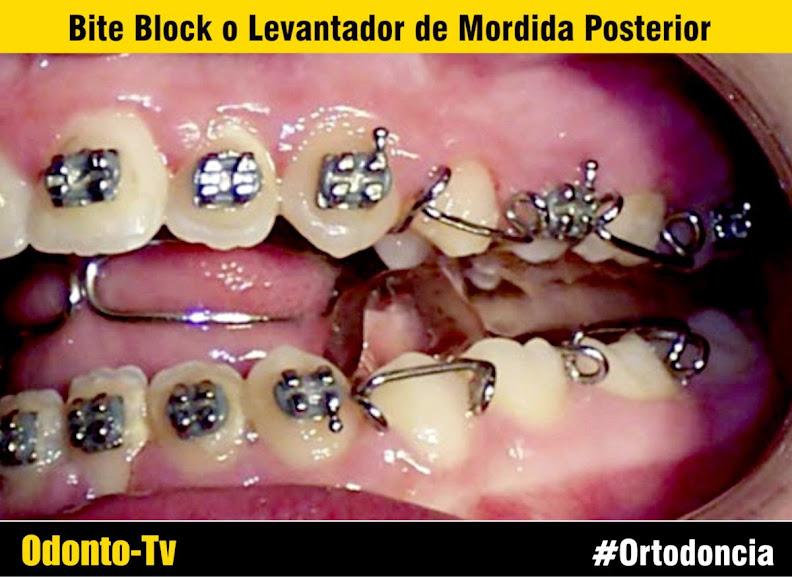 Ortodoncia bite block o levantador de mordida posterior for W de porter ortodoncia