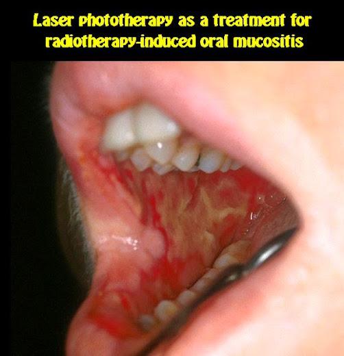 oral-mucositis