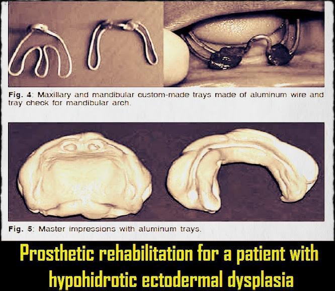 prosthetic-rehabilitation