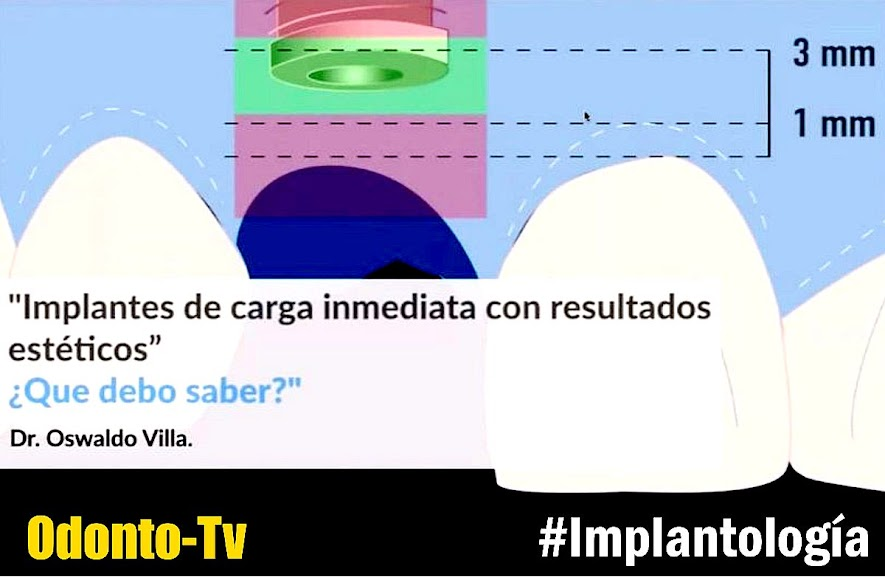 implantes-carga-inmediata
