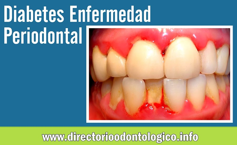 diabetes-enfermedad-periodontal