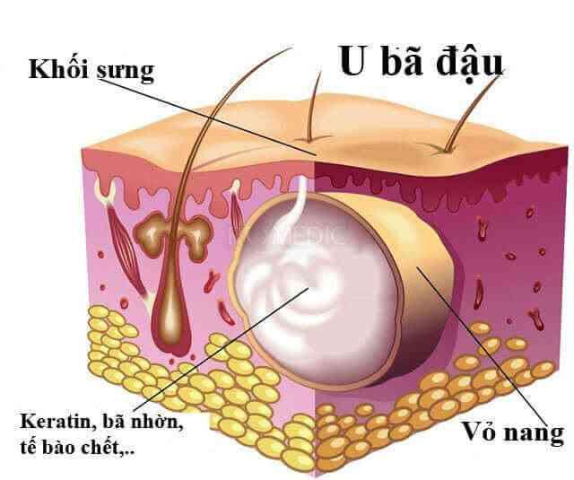 Minh hoạ cấu trúc của 1 u bã đậu điển hình