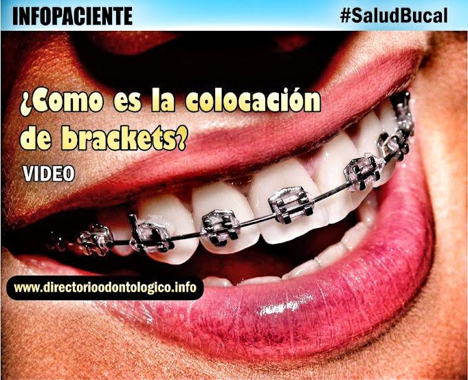 colocacion-brackets