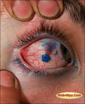 tattoo on eye