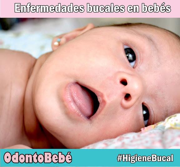 enfermedades-boca-bebé
