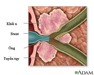 Đặt stent điều trị tắc nghẽn đường mật