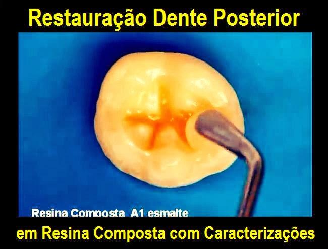 resina-composta