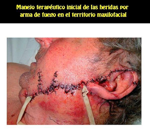 cirugia-maxilo-facial