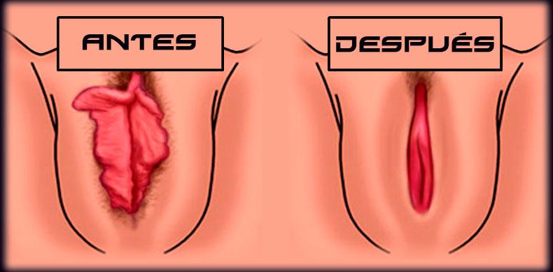 Espinillas en la vagina clti