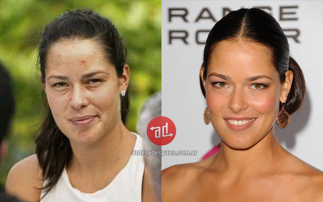 Photos of Ana Ivanovic with acne