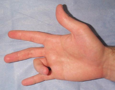 Biểu hiện điển hình của ngón tay bật