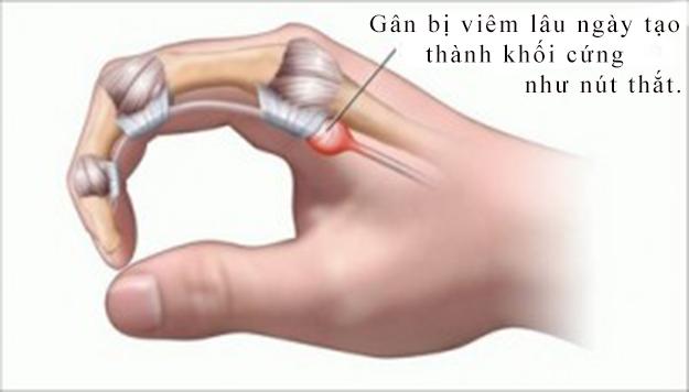 Minh hoạ tổn thương gân gấp trong bệnh ngón tay cò súng