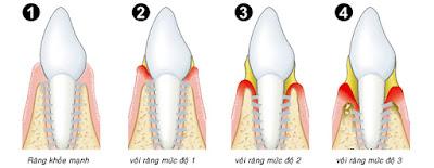 Sự hình thành cao răng