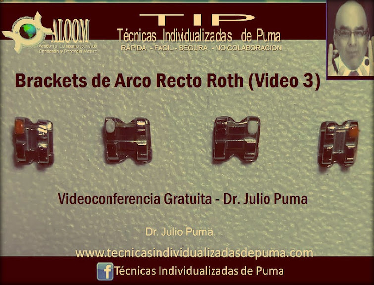 brackets-arco-recto