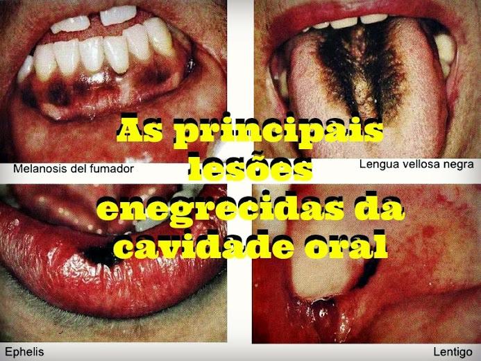 lesões-enegrecidas-cavidade-oral