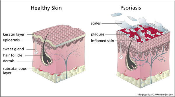 Women's Hospital found that psoriasis was really exacerbated when people drank non-light beer in particular 1