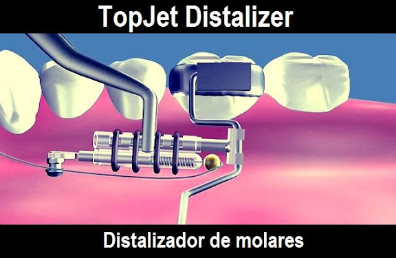 Topjet distalizer distalizador de molares odonto tv for W de porter ortodoncia