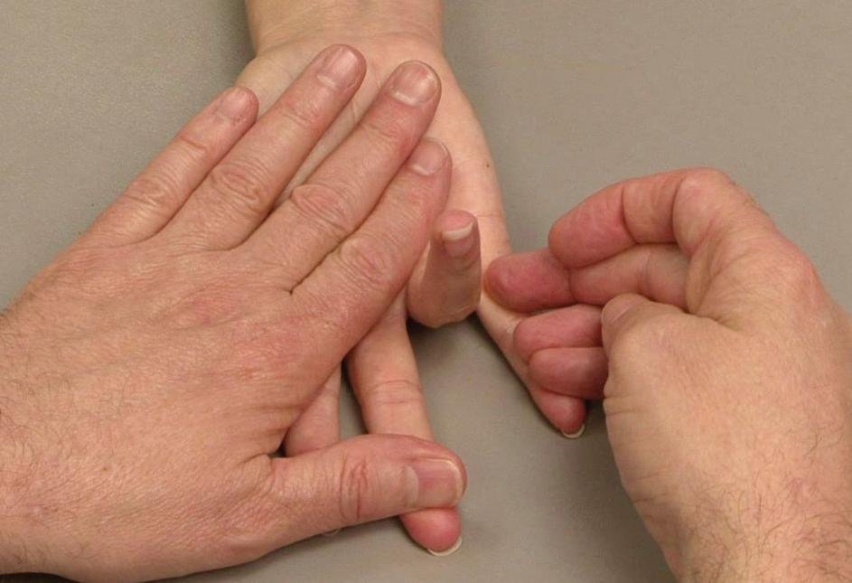 Chẩn đoán chính xác bệnh ngón tay cò súng