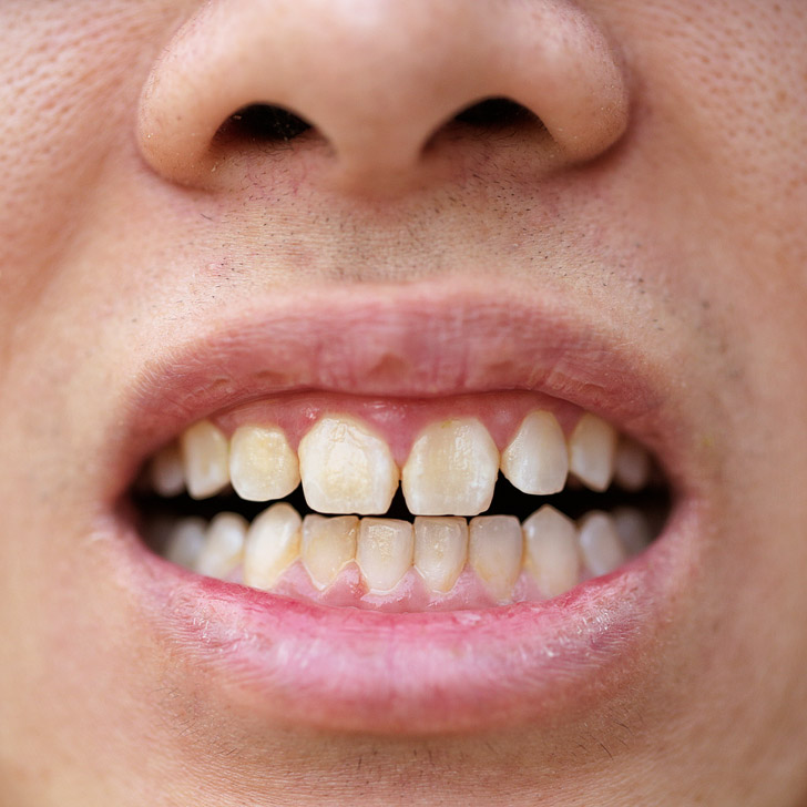 Smile Brilliant Reviews (Best Teeth Whitening At Home).