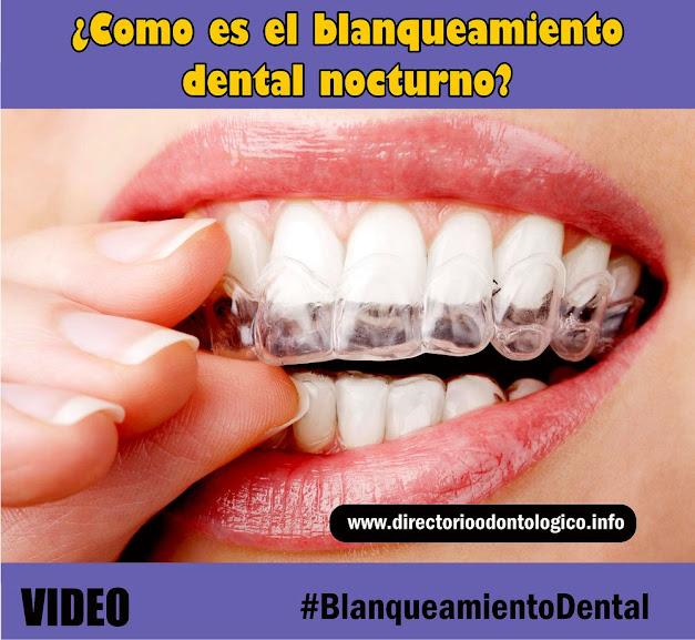 blanqueamiento-dental-nocturno