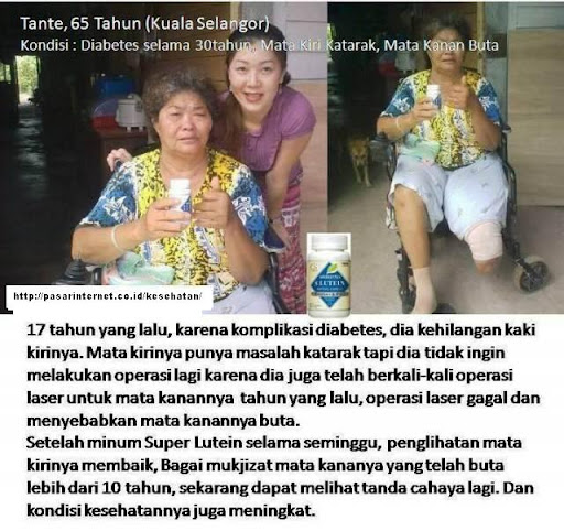 mata%252520buta Testimonial Naturally Plus