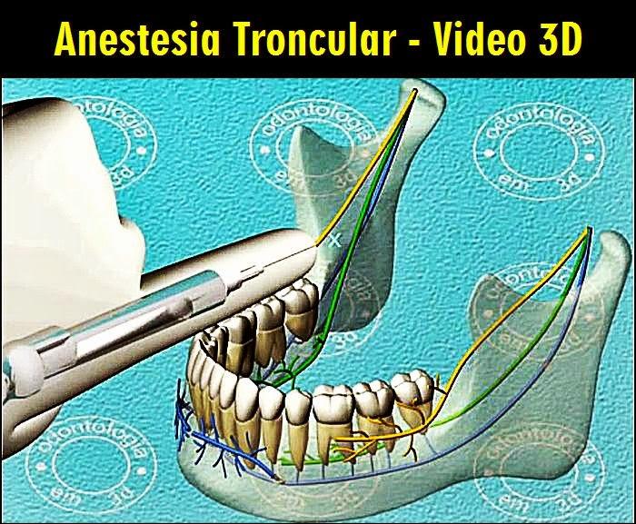 anestesia-troncular