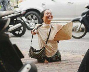 nụ cười người khuyết tật