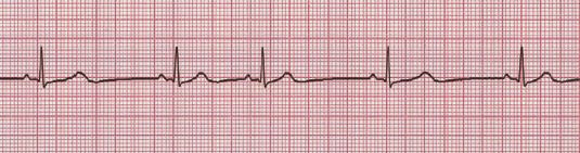 Sinus arrhythmia ECG