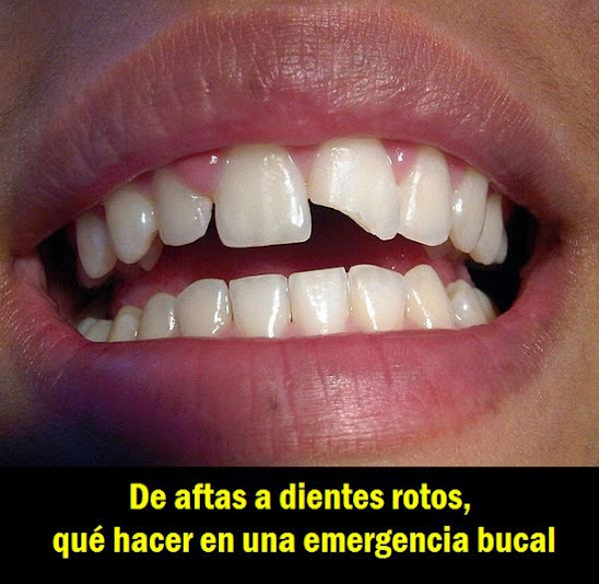 emergencia-dental